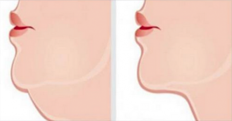 If You Have A Double Chin, These Simple Exercises Will Get Rid Of It FAST